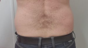 Exilis Elite Stubborn Fat Melting and Body Contouring - After